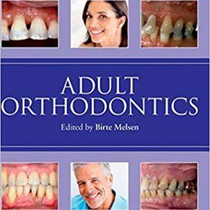 Adult Orthodontics by Birte Melsen